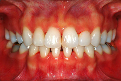 子宮内膜症,完治,歯科,神経,虫歯治療,治療方法,子宮筋腫,生理不,生理痛,名医,G.V. BLACK DENTAL OFFICE,GVBDO