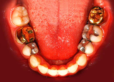 歯列矯正,ホープレス,奥歯,抜いて,親知らず,移動させる,インプラント,不要,実例,G.V. BLACK DENTAL OFFICE,GVBDO
