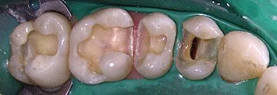 銀歯, 保険 ,なぜ, 虫歯, 再治療,ラバーダム, 二次齲蝕, アマルガム 名医,G.V. BLACK DENTAL OFFICE,GVBDO