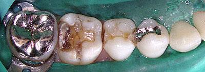 子宮内膜症,原因,歯科,神経,虫歯治療,治療方法,子宮筋腫,生理不,生理痛,名医,G.V. BLACK DENTAL OFFICE,GVBDO