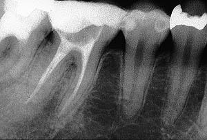 子宮内膜症,原因,歯科,神経,虫歯治療,治療方法,子宮筋腫,生理不,生理痛,名医,G.V. BLACK DENTAL OFFICE,GVBDO,