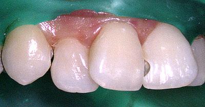 前歯, レジン, 虫歯, 再治療,白い詰め物, 変色, しみる, 痛い, 理由, 保険,名医,G.V. BLACK DENTAL OFFICE,GVBDO
