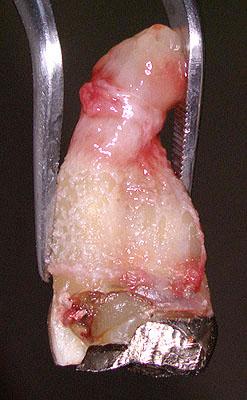 根尖病巣, 根尖病変, 歯, 画像,写真, 神経, 腫れる, 症状, 抜歯, 痛い, 名医 ,G.V. BLACK DENTAL OFFICE,GVBDO