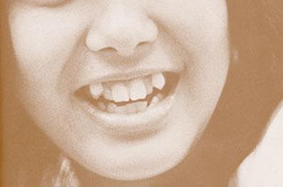 歯列矯正, 親知らず, 移動, 抜歯,奥歯, インプラント,しなくて良い,方法,G.V. BLACK DENTAL OFFICE,GVBDO