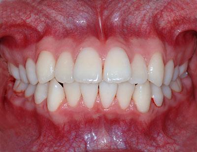 中学生や小学校高学年になって歯列矯正を始めようと考えて ...