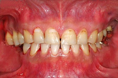 蓄膿症, 上顎洞炎, 完治, 虫歯, 抜歯,痛い, 海上,自衛官, 奥歯, インプラント ,画像 ,名医,GVBDO,G.V. BLACK DENTAL OFFICE
