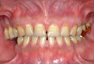 SDA ,Shortened, Dental, Arch),短縮,歯列咬合, 歯列矯正, 奥歯ない, 保定,装置,GVBDO,G.V. BLACK DENTAL OFFICE