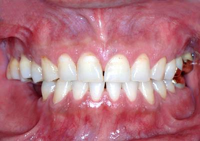 歯列矯正,顎関節症の治療,ため,失敗,更なる,体調不良,歯の痛み,どん底,名医,GVBDO,G.V. BLACK DENTAL OFFICE