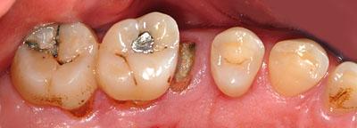 花粉症,蓄膿症 ,上顎洞炎, ひどい, 醜い, 歯が悪い,虫歯, 抜歯, 名医,治療方法,画像,名医,GVBDO,G.V. BLACK DENTAL OFFICE