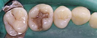 虫歯再治療,過剰治療,二次カリエス,画像,京都,名医,GVBDO,G.V. BLACK DENTAL OFFICE