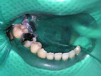 痛くない再治療,歯科,二次カリエス,虫歯,画像,写真,名医,G.V. BLACK DENTAL OFFICE ,GVBDO,