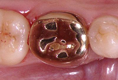 ラバーダム,虫歯治療,画像,アメリカ,歯科,標準治療,名医,G.V. BLACK DENTAL OFFICE,GVBDO,