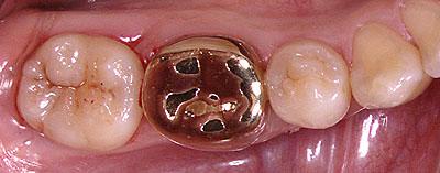 ラバーダム,虫歯治療,画像,アメリカ,歯科,標準治療,名医,G.V. BLACK DENTAL OFFICE,GVBDO