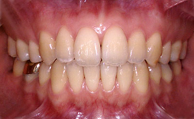 アマルガム,アトピー,危険性,amalgam,歯科,除去,水銀,症状, 成分,画像,写真,費用,GVBDO,G.V. BLACK DENTAL OFFICEG.V. BLACK DENTAL OFFICE,GVBDO