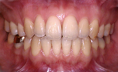 歯列矯正,失敗,再治療,やり直し,矯正,期間,年齢,京都,名医,GVBDO,G.V. BLACK DENTAL OFFICE