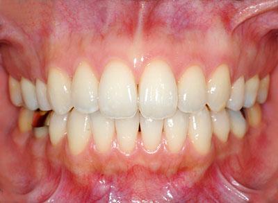 歯列矯正,保定,DP,再制作,リテーナー,後戻り,画像,名医,G.V. BLACK DENTAL OFFICE,GVBDO,