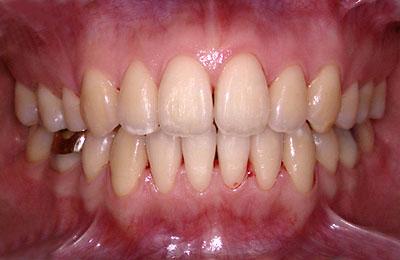 歯列矯正,症例報告,規則,保定,2年間,経過報告,名医,G.V. BLACK DENTAL OFFICE,GVBDO,