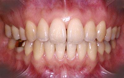 歯列矯正, 大成功, 顎関節症,ホワイトニング, うつ病, ひきこもり,実話,GVBDO, G.V. BLACK DENTAL OFFICE,
