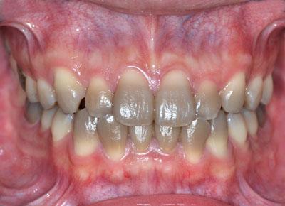 テトラサイクリン,歯,灰,黒,黄,着色,抗生物質,削らない,治療方法,ブログ,画像,症例,実例,GVBDO,G.V. BLACK DENTAL OFFICE