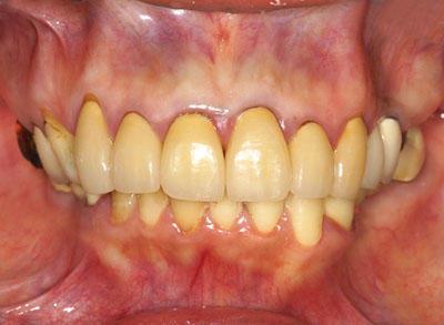 顎関節症,歩行困難,股関節,集中力,なし,目がかすむ,歯が溶ける, インプラント, GVBDO,G.V. BLACK DENTAL OFFICE