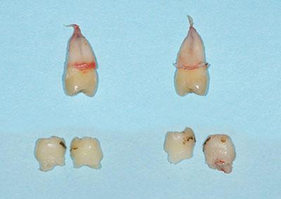 deciduous,milk,tooth,extraction,乳歯,抜歯,gvbdo