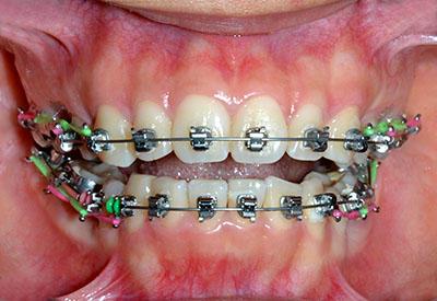 orthodontics,brace,歯列矯正,ブラケット,gvbdo,length,how,long,最短,short