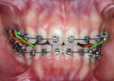 orthodontics,brace,歯列矯正,ブラケット,gvbdo,length,how,long,最短,short