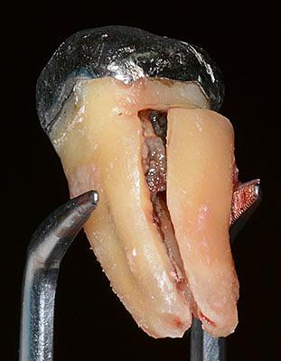 歯根破折,症状,原因,画像,レントゲン,治療 保存,痛み,抜歯,接着,修復,GVBDO,G.V. BLACK DENTAL OFFICE