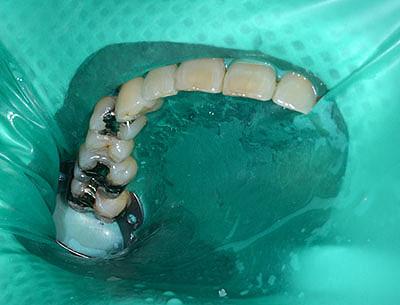 アマルガム,歯の詰め物,理由,実際の治療, 画像, 治療済み, なぜ,虫歯になる,GVBDO,G.V. BLACK DENTAL OFFICE