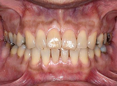 顎関節症,歯列矯正で治す,実際の治療方法, 画像, 体験談, 投薬, 心療内科, GVBDO,G.V. BLACK DENTAL OFFICE
