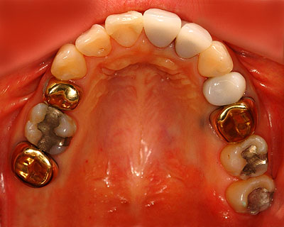歯列矯正,最新保定装置,画像,DP,後戻しない, リテーナー, メリット, 名医 , G.V. BLACK DENTAL OFFICE, GVBDO,