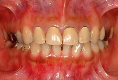 審美歯科,デメリット,差し歯,方法,画像,オールセラミック,料金,膿, 名医,GVBDO, G.V. BLACK DENTAL OFFICE
