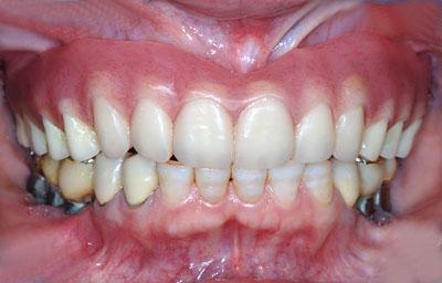 進化する総入れ歯,30代,20代,名医,GVBDO,G.V. BLACK DENTAL OFFICE