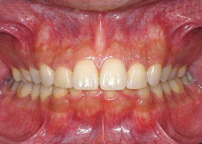 歯列矯正のブラケットの装着期間は最短でどのくらいで外れる ...