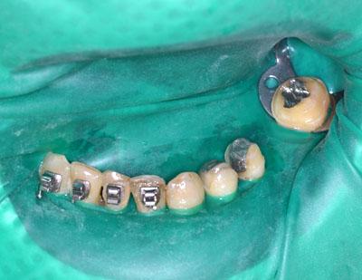 矯正歯科,受け口,名医,反対咬合,下顎前突,最新治療,東京,GVBDO,G.V. BLACK DENTAL OFFICEE