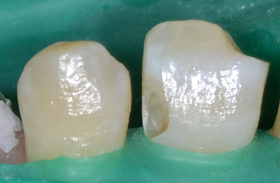 前歯,虫歯,画像,レジン,最新治療方法,画像,東京,名医,GVBDO,G.V. BLACK DENTAL OFFICE