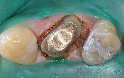 前歯,綺麗に,美しく,治す,最新治療方法,画像,東京,名医,GVBDO,G.V. BLACK DENTAL OFFICE