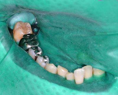 うずく歯,虫歯,銀歯,中,神経取らない,最新治療,方法,画像,GVBDO,G.V. BLACK DENTAL OFFICE