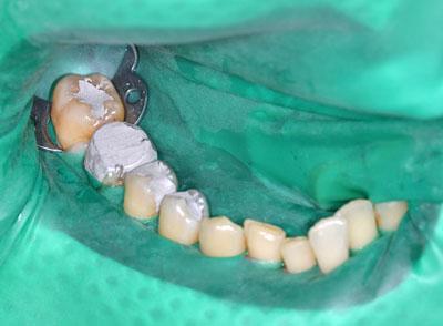 クラウン,歯,長持,期間,神経取らない,最新治療方法,画像,GVBDO,G.V. BLACK DENTAL OFFICE