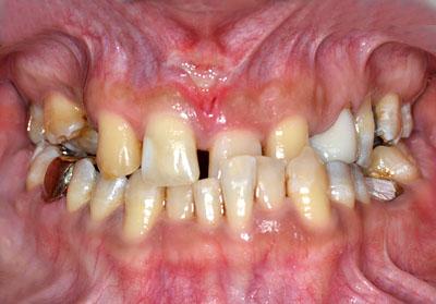 ゴールドクラウン,歯,メリット,最新治療方法,画像,名医,GVBDO,G.V. BLACK DENTAL OFFICE