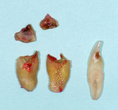歯列矯正,抜歯,隙間,理由,デメリット,最新治療,方法,東京,名医, GVBDO,G.V. BLACK DENTAL OFFICE