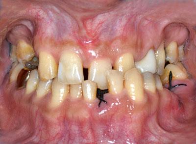 奥歯,抜歯,矯正,移動,インプラント,画像,方法,名医,G.V. BLACK DENTAL OFFICE,GVBDO