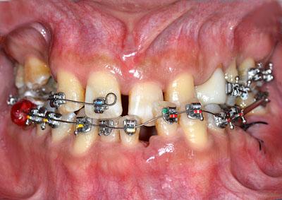 奥歯,抜歯,矯正,移動,インプラント,画像,方法,名医,G.V. BLACK DENTAL OFFICE,GVBDO ,