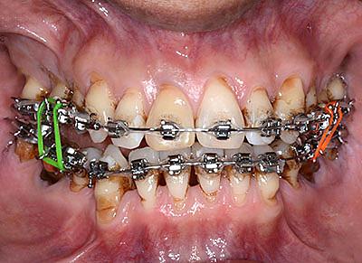 orthodontics,brace,歯列矯正,ブラケット,gvbdo