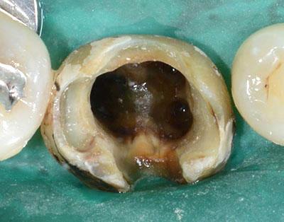 root canal,rct,歯内治療,根幹治療,神経の治療,gvbdo,G.V. BLACK DENTAL OFFICE