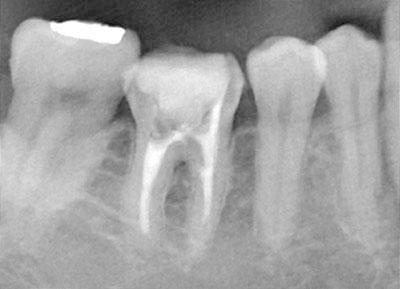 レントゲン,x-ray,dental,歯科,gvbdo,G.V. BLACK DENTAL OFFICE