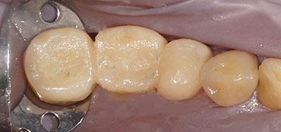 歯が痛い ,うずく,物が噛めない,首,痛み, 流動食, 耳鳴り,聴力,低下,頭痛,GVBDO,G.V. BLACK DENTAL OFFICE