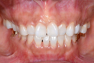 nice,dental,dentist,good,job,良い症例,うまい,名医