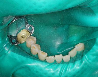 rubber dum,ラバーダム,dental,歯科用,gvbdo,G.V. BLACK DENTAL OFFICE