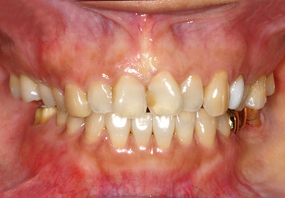 bridge,dental,teeth,prosthesis,ブリッジ,金歯,gvbdo